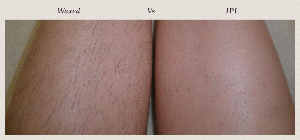 ipl_for_hair_removal._ipl_the_right_leg__wax_the_left_leg.the_result_after_4weeks._first_session_only..jpg