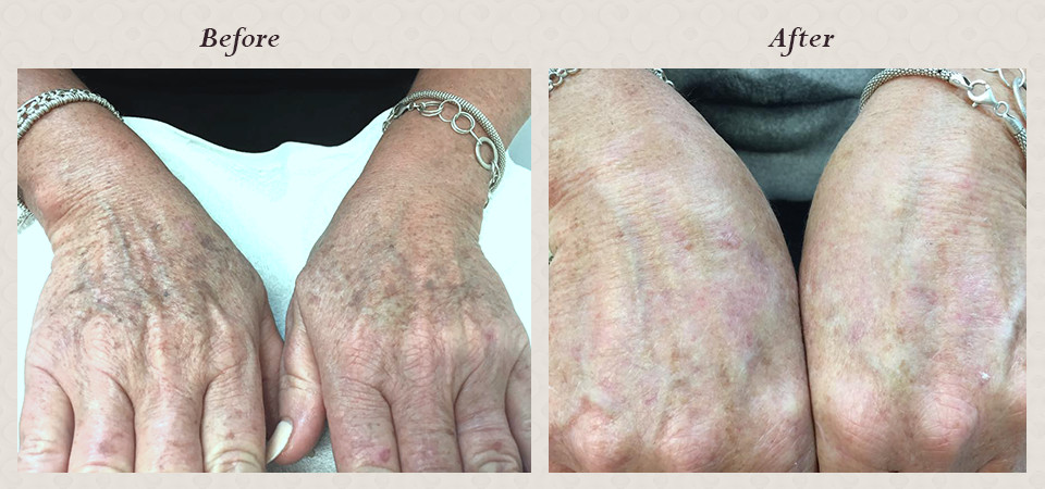 ipl_rejuvenation_on_hands_for_sunspots._the_result_in_one_treatment_before___after_photos_after_3weeks._1.jpg